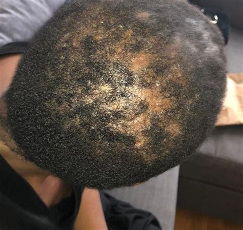 Observed Recovery in Folliculitis Decalvans Case France